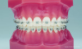 Ortozahn, Altersgrenze Kieferorthopädie, Information Zahnspange